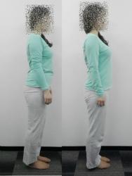 反り腰の姿勢矯正