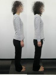 反り腰と骨盤矯正