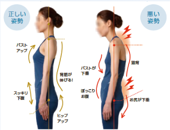 良い姿勢と悪い姿勢の比較